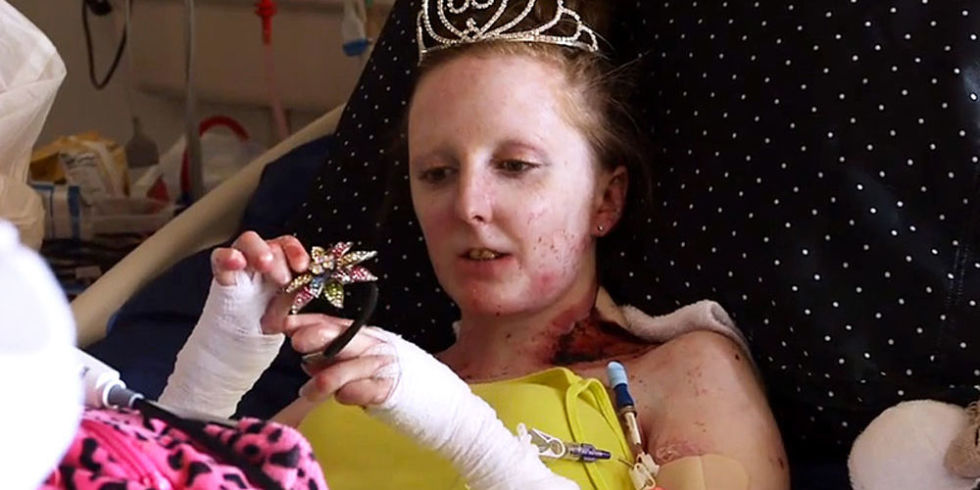 High school senior with a rare skin disease just had her dream prom