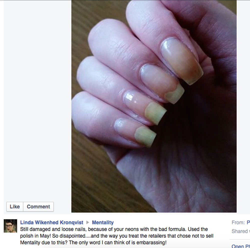 This Popular Nail Polish May Be Causing User\'s Nails To Peel Off ...