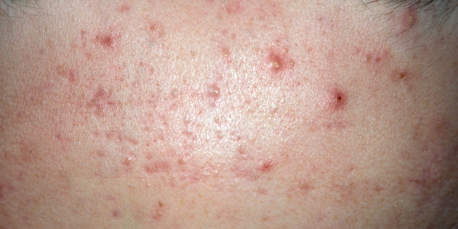 How To Get Rid Of Body Acne For Good